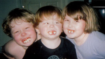 Goofy toothed  Kids